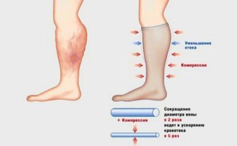 Эффективное лечение варикозного расширения вен: компрессионный трикотаж